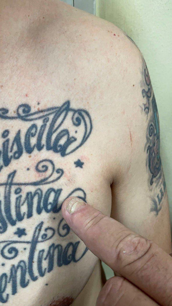 Los arañazos en el cuerpo del detenido en el feminicidio de Magalí Noelia Gómez (27) en El Talar.  Pantalla de fotos
