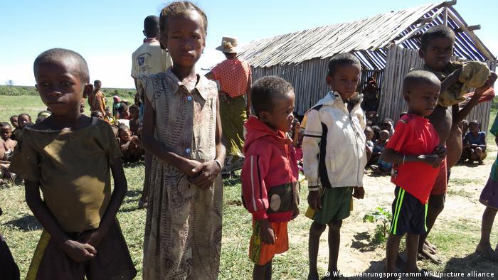 Madagascar    Niños desnutridos